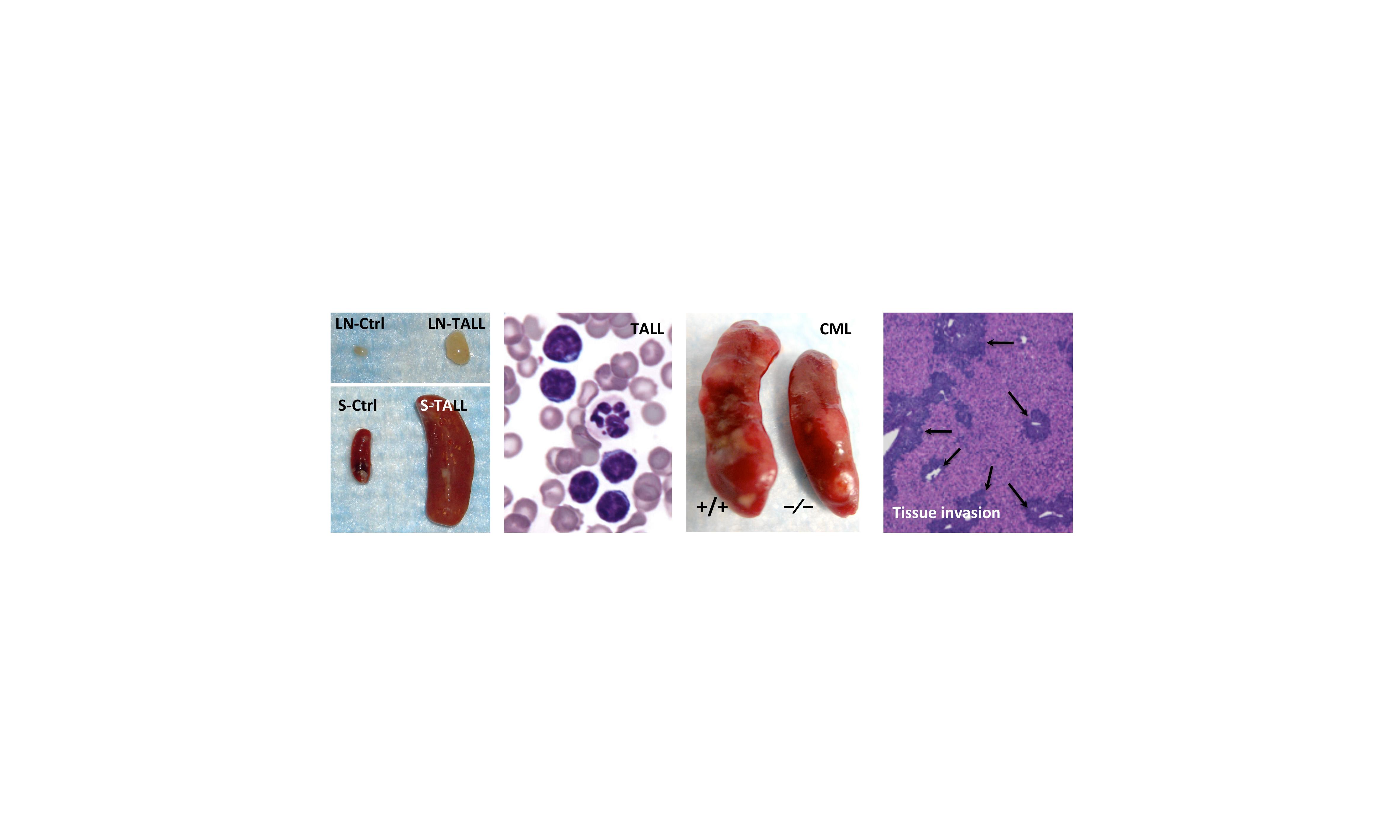 pathobiology of leukemias