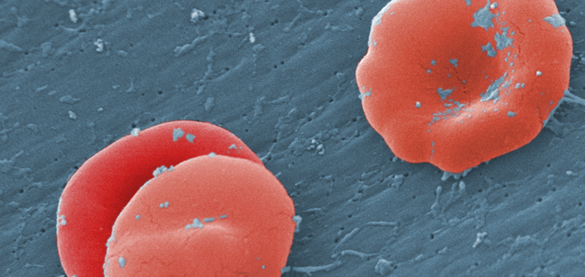 Under a high magnification of 8000X, this scanning electron micrograph (SEM) revealed some of the ultrastructural morphology displayed by red blood cells (RBCs) in a blood specimen of a 6 year old male patient that has sickle cell with hereditary persiste