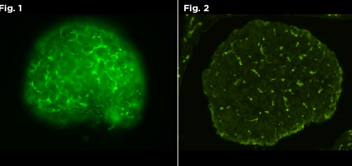 Figure 1: Live Fluorescent image of GFP positive neonate. Figure 2: Fluorescent image of GFP positive neonate.
