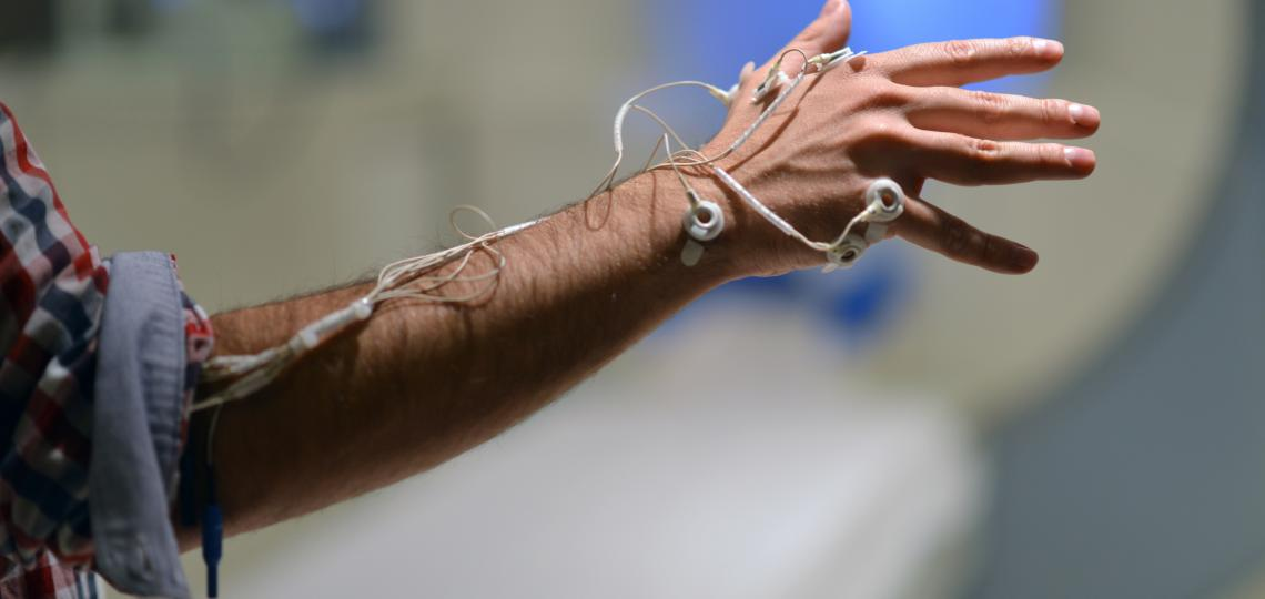 TMS Hand w/ Electrodes
