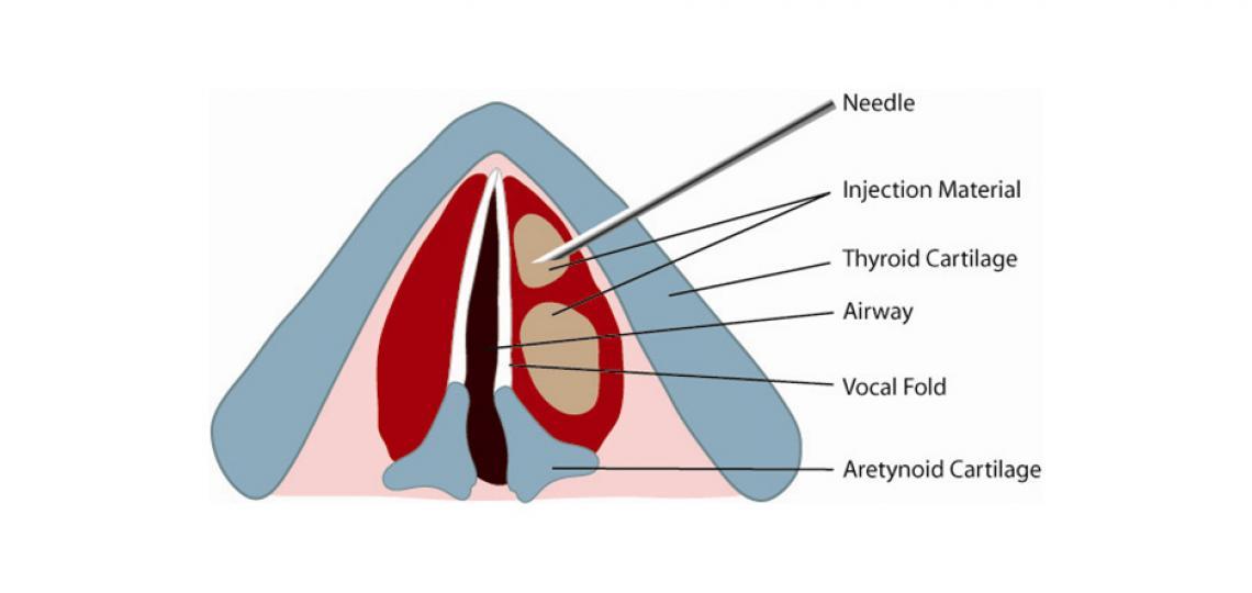 Illustration of injection laryngoplasty (credit: Alexander Sevy, M.D.)