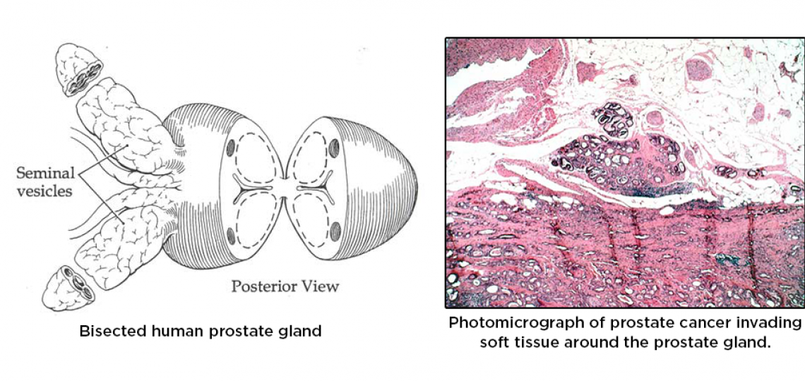 Prostate Cancer overview.