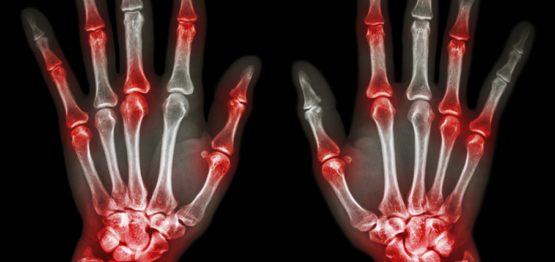 Finger and joint pain