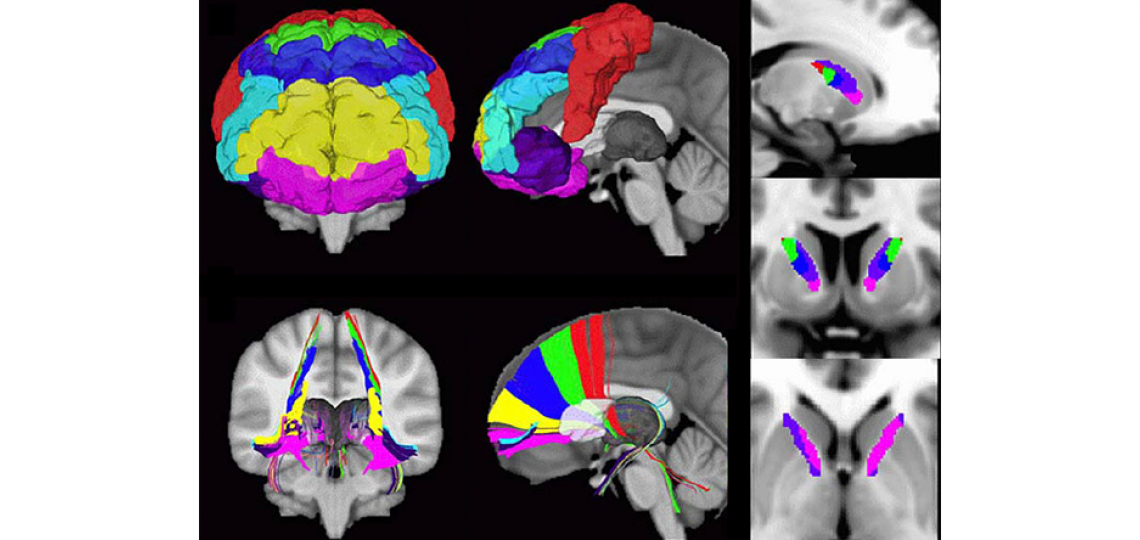 Investigating cortical and basal ganglia networks