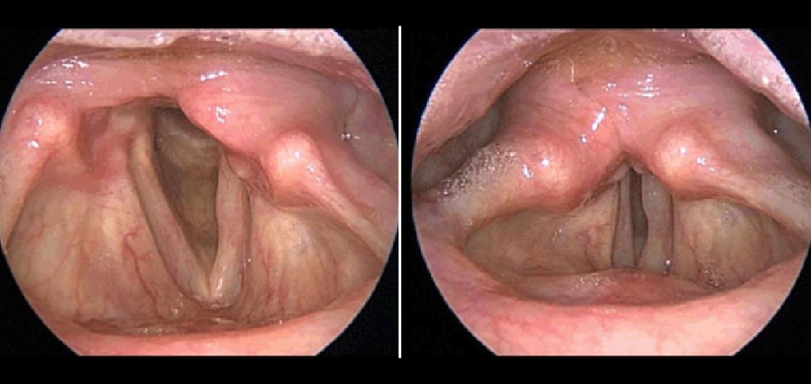 Unilateral (one-sided) vocal fold paralysis. Only one vocal fold is moving so when you try to talk there is a large gap between the vocal folds resulting in a weak, breathy voice.