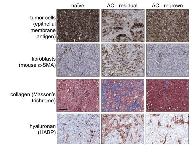Tumor micro-environment contributions to TNBC chemoresistance: Extracellular matrix & immune therapies