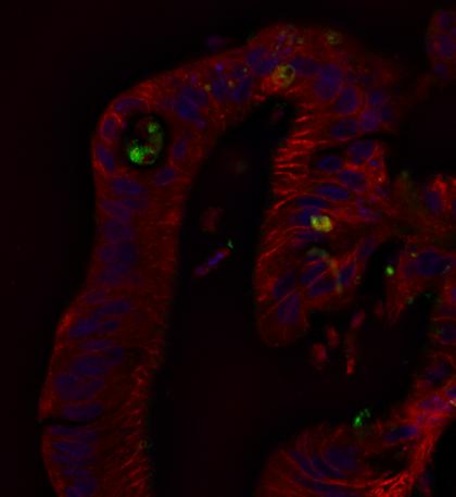 Enterovirus Replication in Beta Cell Models and Intestinal Enteroids