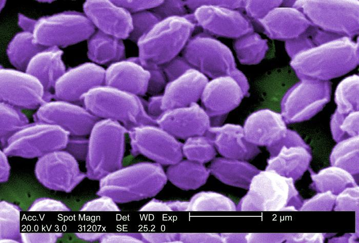 Electron microscope image of Bacillus anthracis spores.