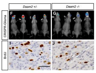 Daam2 driven degradation of VHL promotes gliomagenesis