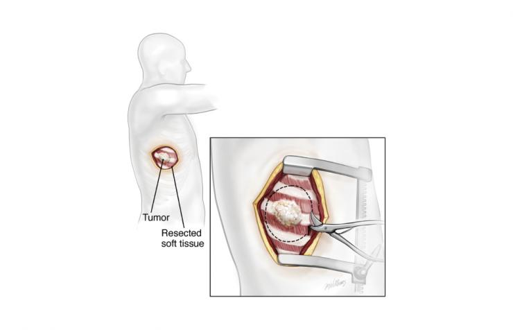Resection of a chest wall tumor. Image copyright McGraw-Hill Company