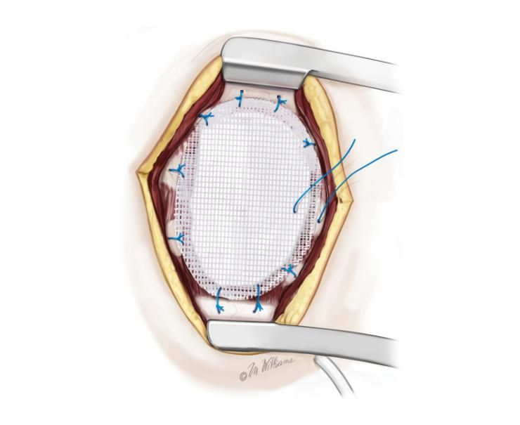 Chest Wall reconstruction.  Image copyright McGraw-Hill Company