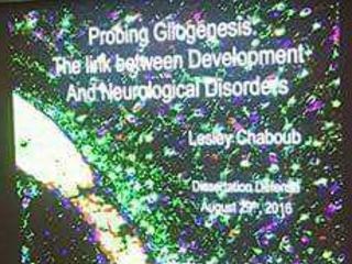 Probing Gliogenesis: The Link Between Development and Neurological Disorders