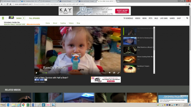 The Animal Planet channel features a story on congenital CMV infection.