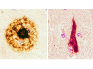 Amyloid plaques (left) and Neurofibrillary tangles (right) are the pathological lesions of Alzheimer's disease. Photo Courtesy of Dr. Mel B. Feany.