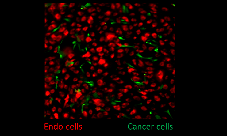 how sympathetic nerve activation modifies the bone marrow environment to favor the establishment and growth of metastatic breast cancer cells.